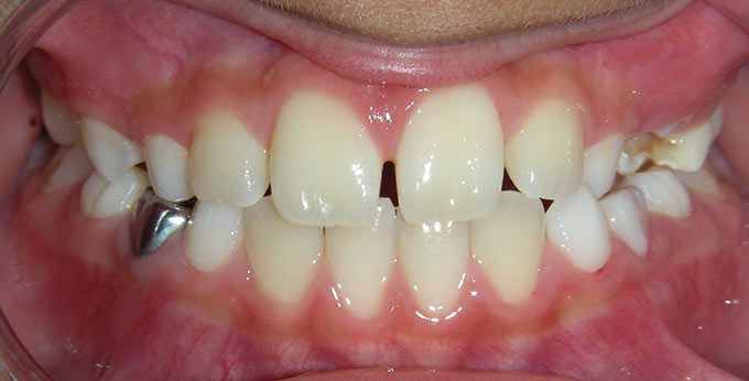 Child's teeth after treatment for an underbite with a plate